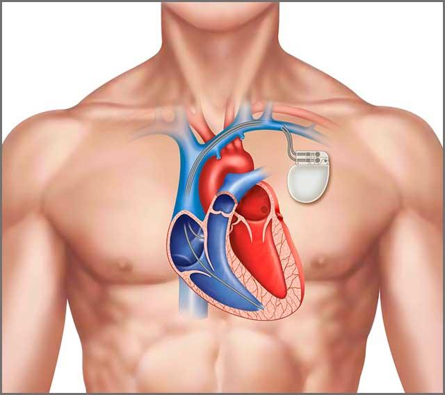 在医疗案例中使用柔性 PCB 的心脏起搏器.jpg